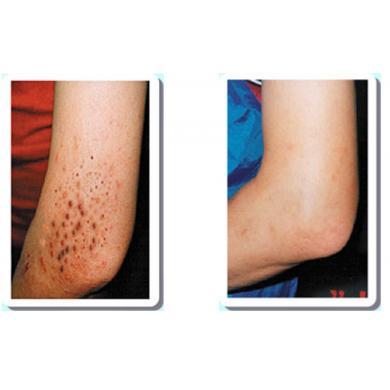 光觸媒可分解金黃色葡萄球菌進而改善異位性皮膚炎之分析